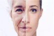 5 ways to prevent early aging